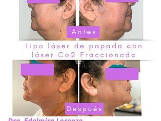Cirugía de papada - 794239