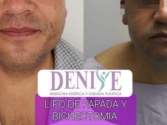 Cirugía de papada - 796139