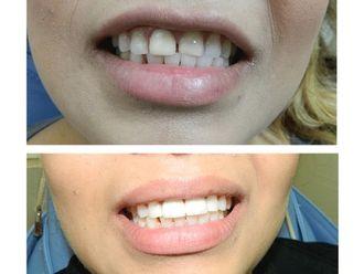 Ortodoncia - 499608