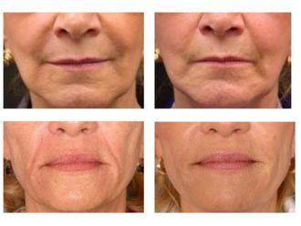 Aumento de labios-584107