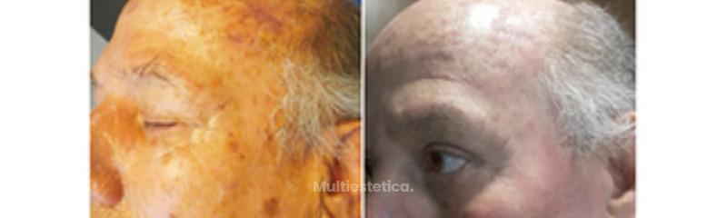 resurfacing facial laser