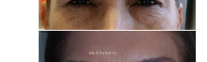 botox y cirugia de parpados