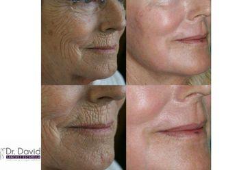 Rejuvenecimiento facial-632652