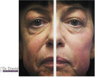 Rejuvenecimiento facial-632653
