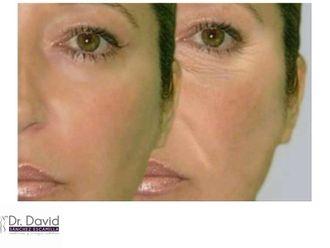 Rejuvenecimiento facial-632654