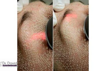 Tratamientos faciales-632662