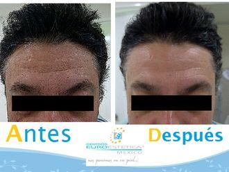 Rejuvenecimiento facial-588304