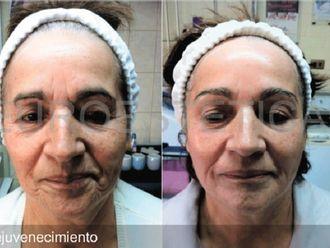 Rejuvenecimiento facial-605752