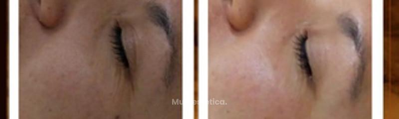 Tratamiento Facial con Suero orgánico