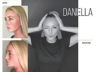 Daniella 80%
