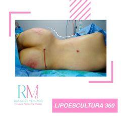 Postoperatorio Lipo 360