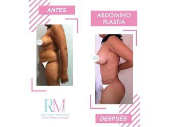 Abdominoplastia-650581