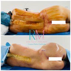Lipoescultura y aumento gluteo y cadera con grasa - Dra. Rosy Mercado