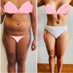 Abdominoplastía extendida - Dra. Rosy Mercado