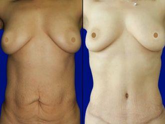 Abdominoplastia-661075