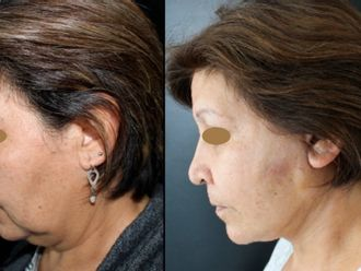 Cirugía facial-661165