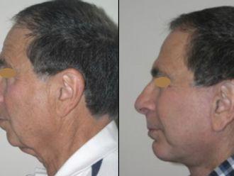 Cirugía facial-661167