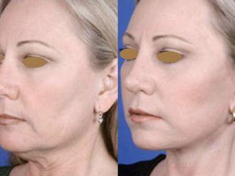 Cirugía facial-661168