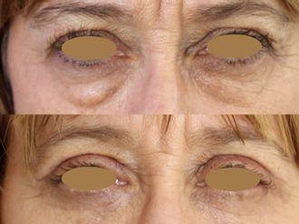 Blefaroplastia-661182
