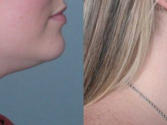 Cirugía de papada-661187