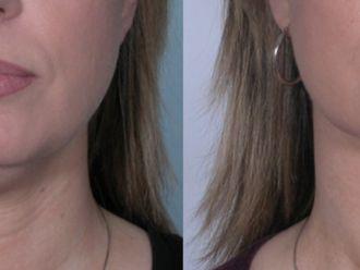 Cirugía de papada-661188