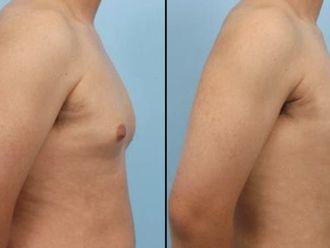 Cirugía ginecomastia-661221