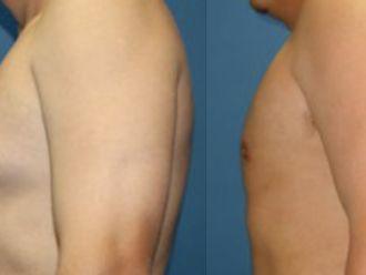 Cirugía ginecomastia-661224