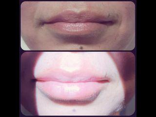 Aumento de labios - Dr. Peimbert