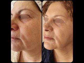 Rejuvenecimiento facial con láser CO2 fraccionado - Dr. Peimbert