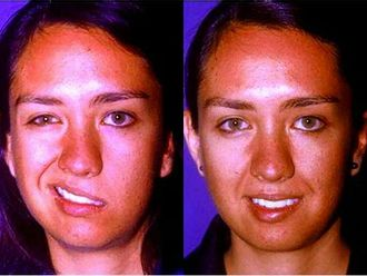 Cirugía maxilofacial - 205041