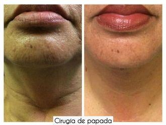 Cirugía de papada-641761
