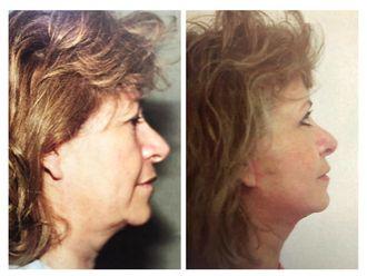 Rejuvenecimiento facial - 641777