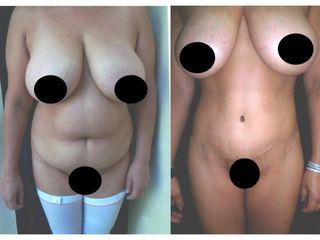 Liposucción + Lipectomía