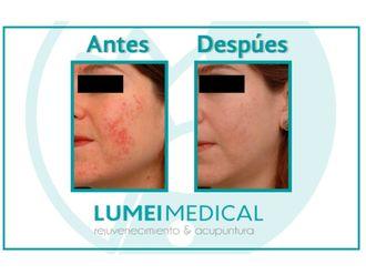 Tratamiento antiacné-584640