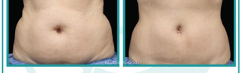 liposucción sin bisturí