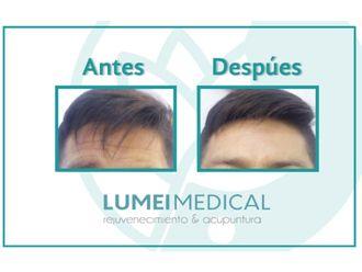 Tratamientos anticelulíticos-586332