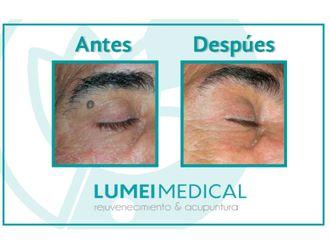 Eliminación de verrugas-586335