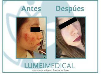 Tratamiento antiacné-603788