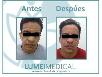 Rejuvenecimiento facial-603791
