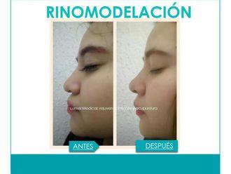 Rinomodelación-641338
