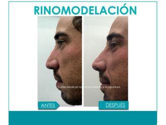 Rinomodelación-641341