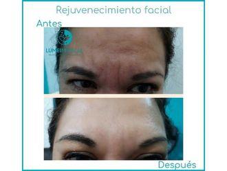 Rejuvenecimiento facial - 645697