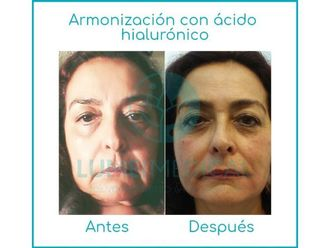 Ácido hialurónico-645698