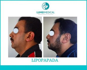 Lipopapada - Lumei Medical