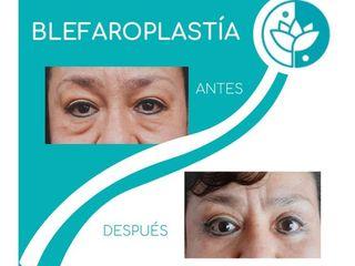 Blefaroplastia - Lumei Medical