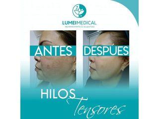 Hilos tensores - Lumei Medical