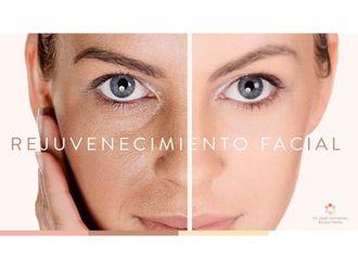 Rejuvenecimiento facial-642622