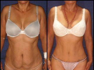Tummy Tuck + Liposucción