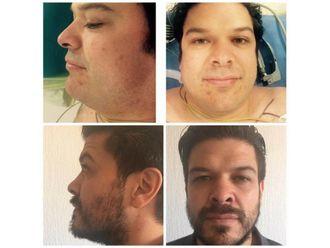 Cirugía para cicatrices - 637252