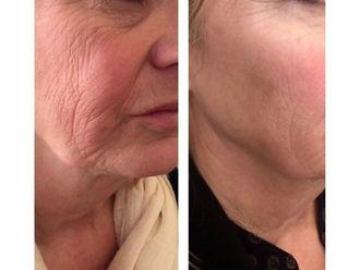 Rejuvenecimiento facial-637253
